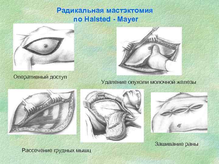 Радикальная мастэктомия по Halsted - Mayer Оперативный доступ Удаление опухоли молочной железы Зашивание раны