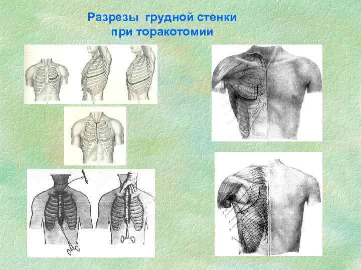 Разрезы грудной стенки при торакотомии