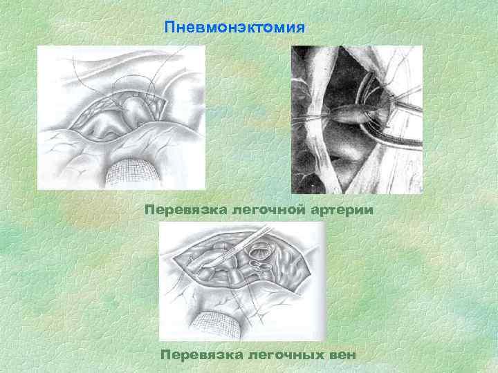 Пневмонэктомия Перевязка легочной артерии Перевязка легочных вен