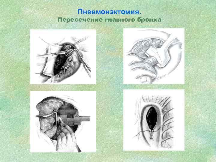 Пневмонэктомия. Пересечение главного бронха