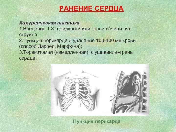 РАНЕНИЕ СЕРДЦА Хирургическая тактика 1. Введение 1 -3 л жидкости или крови в/в или