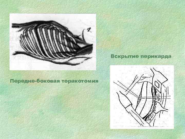 Вскрытие перикарда Передне-боковая торакотомия