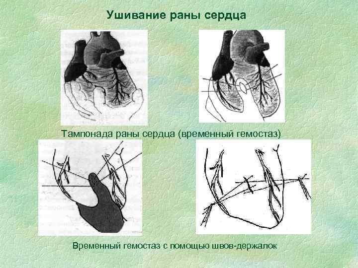 Ушивание раны сердца Тампонада раны сердца (временный гемостаз) Временный гемостаз с помощью швов-держалок