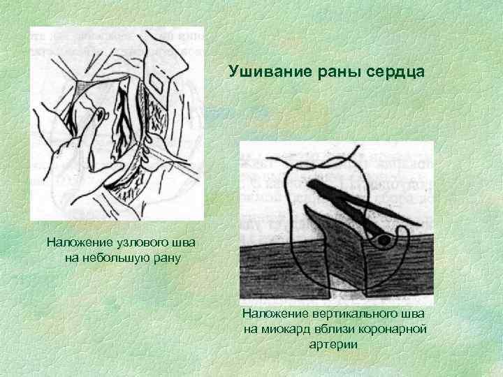 Ушивание раны сердца Наложение узлового шва на небольшую рану Наложение вертикального шва на миокард