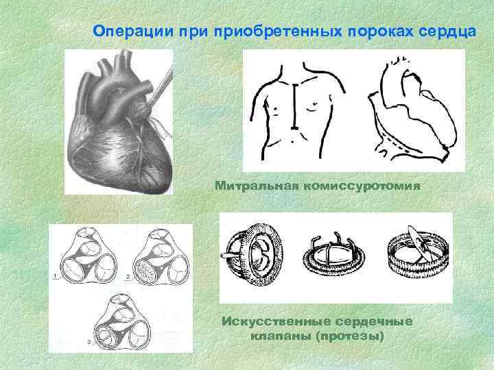 Операции приобретенных пороках сердца Митральная комиссуротомия Искусственные сердечные клапаны (протезы)