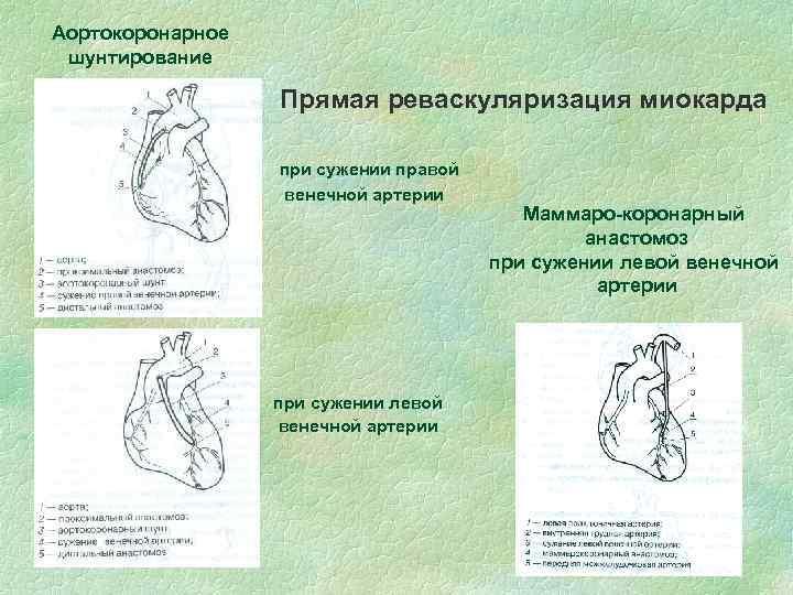 Аортокоронарное шунтирование Прямая реваскуляризация миокарда при сужении правой венечной артерии при сужении левой венечной