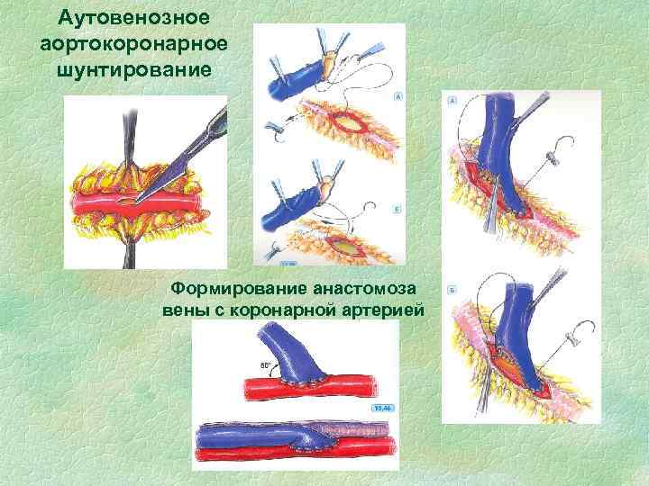 Аутовенозное аортокоронарное шунтирование Формирование анастомоза вены с коронарной артерией
