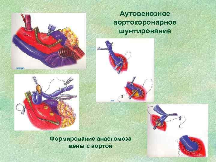 Аутовенозное аортокоронарное шунтирование Формирование анастомоза вены с аортой