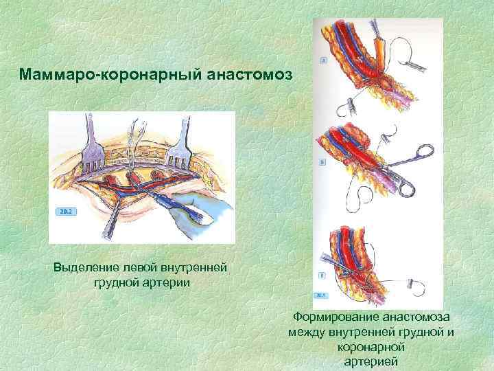 Маммаро-коронарный анастомоз Выделение левой внутренней грудной артерии Формирование анастомоза между внутренней грудной и коронарной