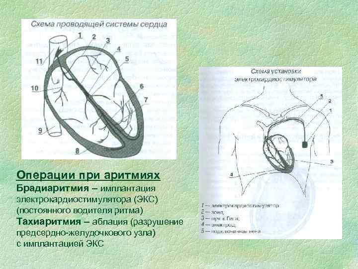 Операции при аритмиях Брадиаритмия – имплантация электрокардиостимулятора (ЭКС) (постоянного водителя ритма) Тахиаритмия – аблация