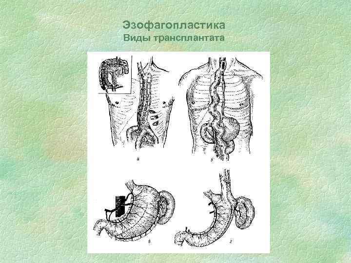 Эзофагопластика Виды трансплантата