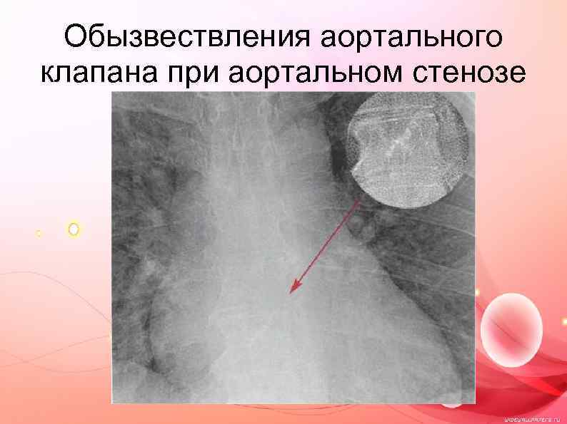 Обызвествления аортального клапана при аортальном стенозе