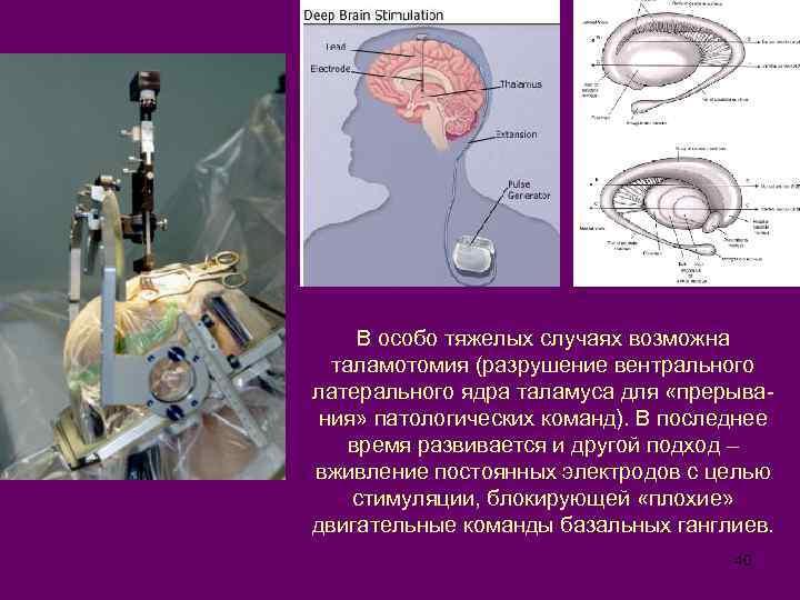 В особо тяжелых случаях возможна таламотомия (разрушение вентрального латерального ядра таламуса для «прерывания» патологических