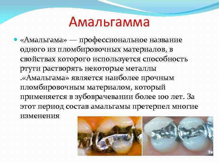 Амальгамма «Амальгама» — профессиональное название одного из пломбировочных материалов, в свойствах которого используется способность