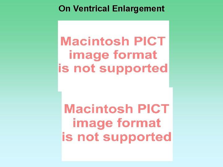 On Ventrical Enlargement