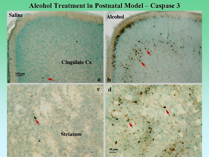 Alcohol Treatment in Postnatal Model – Caspase 3