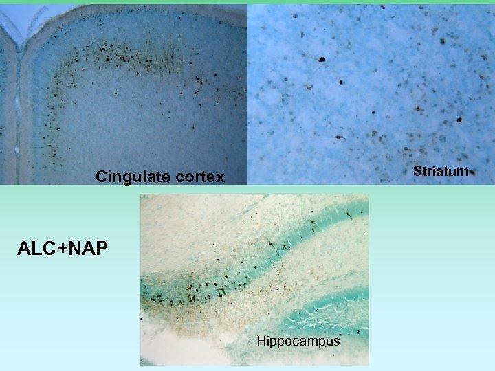 Striatum Cingulate cortex ALC+NAP Hippocampus