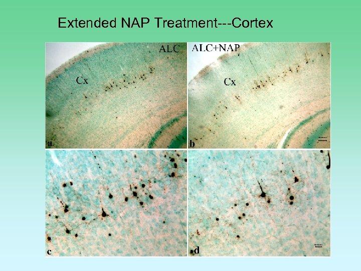 Extended NAP Treatment---Cortex