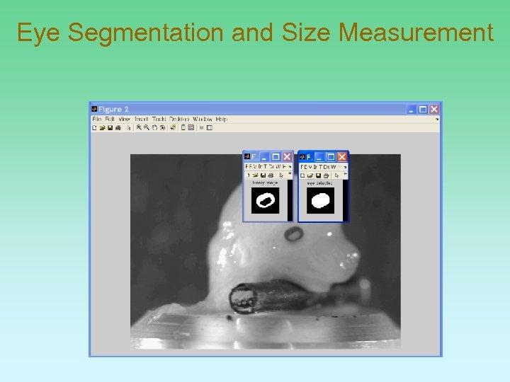 Eye Segmentation and Size Measurement