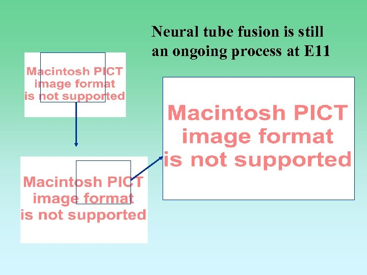 Neural tube fusion is still an ongoing process at E 11