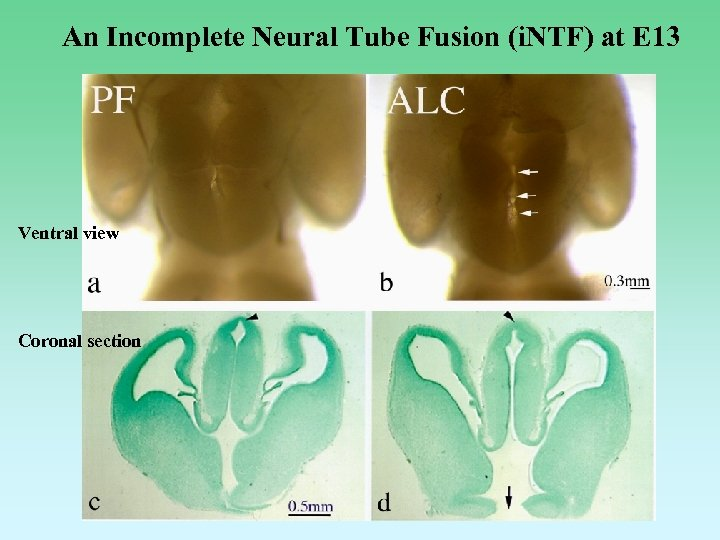 An Incomplete Neural Tube Fusion (i. NTF) at E 13 Ventral view Coronal section
