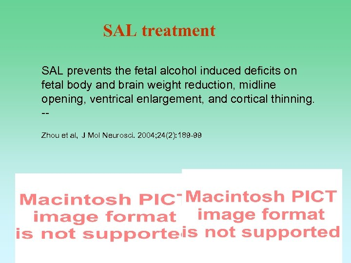 SAL treatment SAL prevents the fetal alcohol induced deficits on fetal body and brain