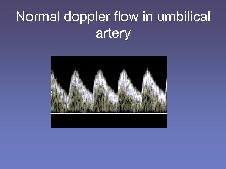 Normal doppler flow in umbilical artery