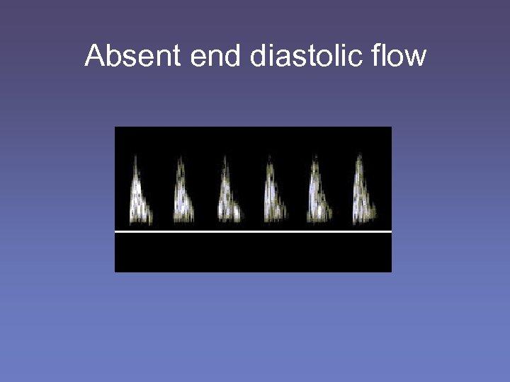 Absent end diastolic flow
