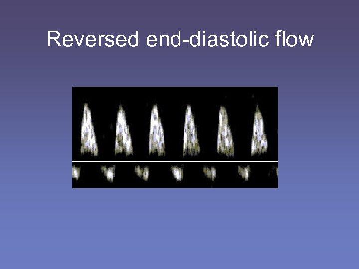 Reversed end-diastolic flow