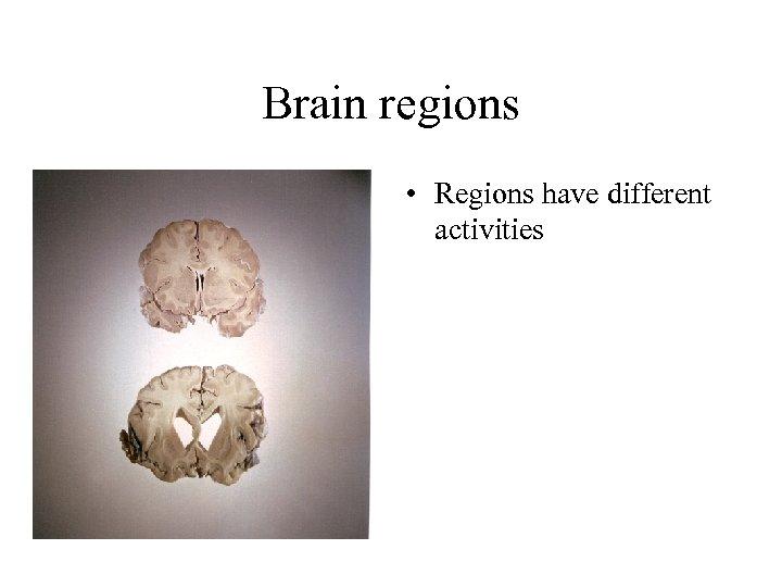 Brain regions • Regions have different activities
