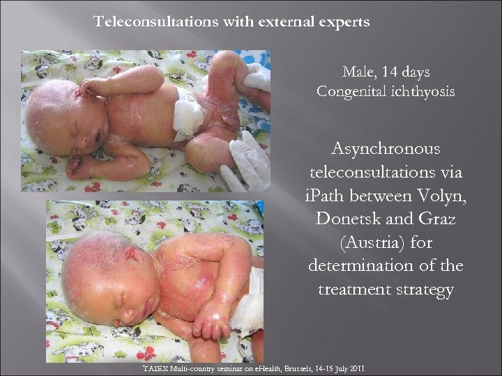 Teleconsultations with external experts Male, 14 days Congenital ichthyosis Asynchronous teleconsultations via i. Path