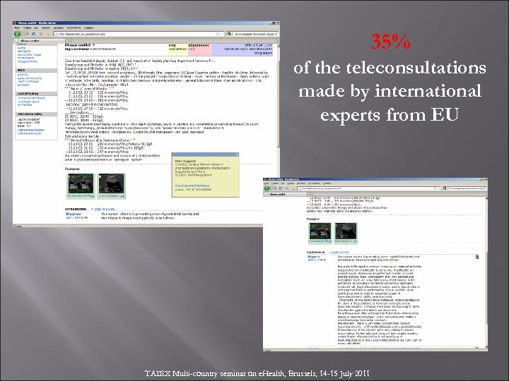 35% of the teleconsultations made by international experts from EU TAIEX Multi-country seminar on