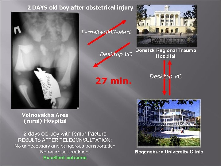 2 DAYS old boy after obstetrical injury E-mail+SMS-alert Desktop VC 27 min. Donetsk Regional