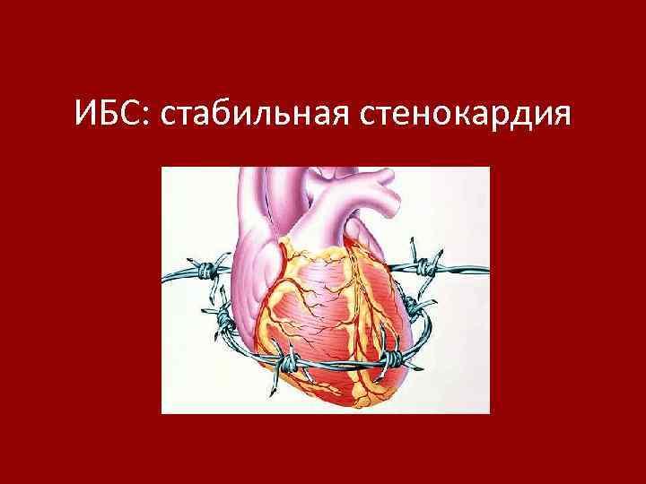 ИБС: стабильная стенокардия