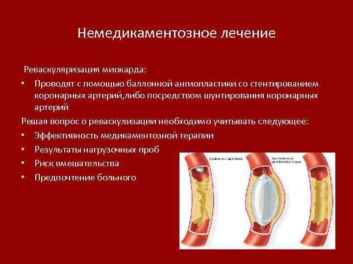 Немедикаментозное лечение Реваскуляризация миокарда: • Проводят с помощью баллонной ангиопластики со стентированием коронарных артерий,