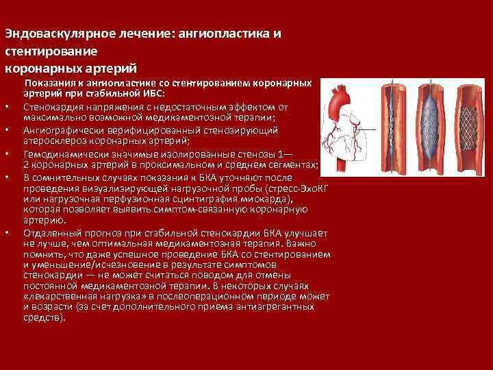 Эндоваскулярное лечение: ангиопластика и стентирование коронарных артерий • • • Показания к ангиопластике со