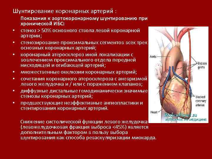 Шунтирование коронарных артерий : Показания к аортокоронарному шунтированию при хронической ИБС: • стеноз >
