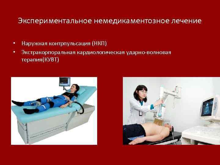 Экспериментальное немедикаментозное лечение • Наружная контрпульсация (НКП) • Экстракорпоральная кардиологическая ударно-волновая терапия(КУВТ)