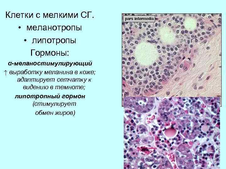Клетки с мелкими СГ. • меланотропы • липотропы Гормоны: α-меланостимулирующий ↑ выработку меланина в