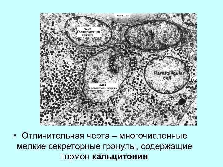 • Отличительная черта – многочисленные мелкие секреторные гранулы, содержащие гормон кальцитонин