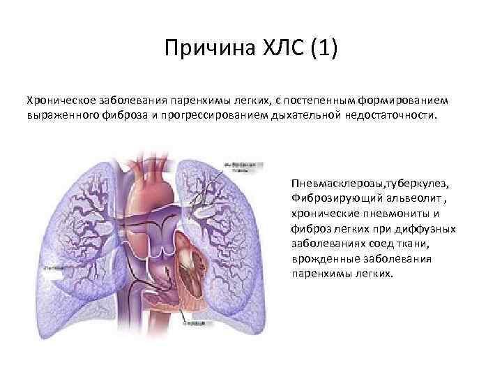 Причина ХЛС (1) Хроническое заболевания паренхимы легких, с постепенным формированием выраженного фиброза и прогрессированием