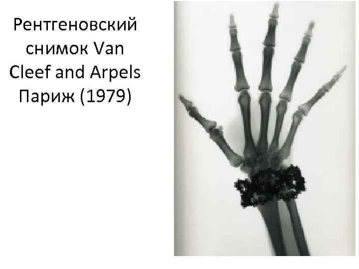 Рентгеновский снимок Van Cleef and Arpels Париж (1979)