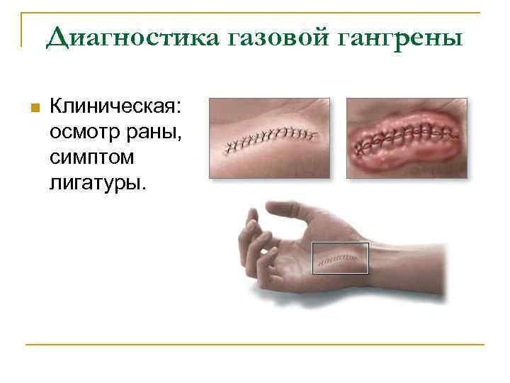 Диагностика газовой гангрены n Клиническая: осмотр раны, симптом лигатуры.