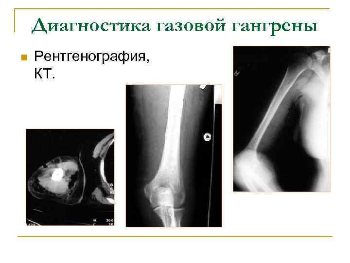 Диагностика газовой гангрены n Рентгенография, КТ.