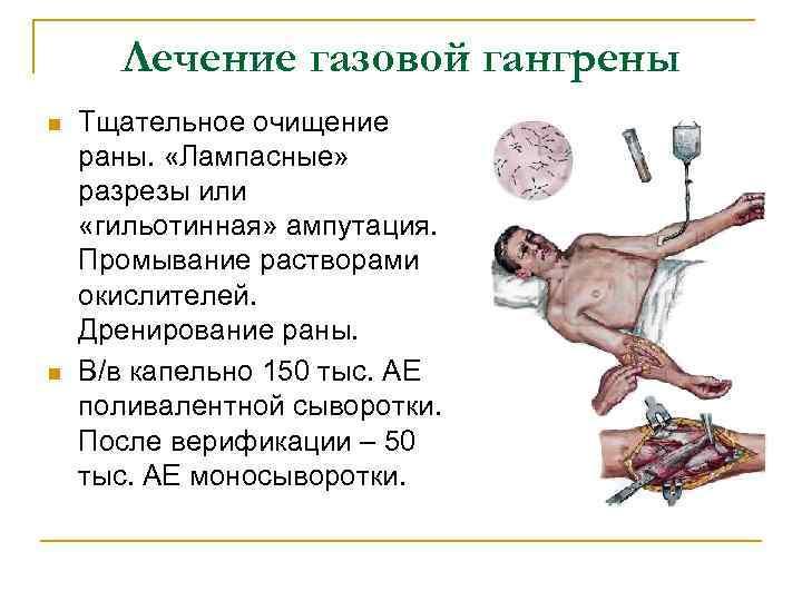 Лечение газовой гангрены n n Тщательное очищение раны. «Лампасные» разрезы или «гильотинная» ампутация. Промывание