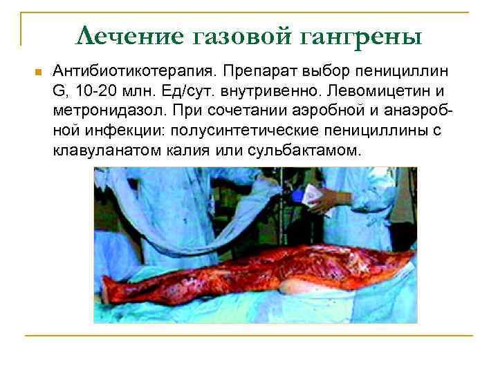 Лечение газовой гангрены n Антибиотикотерапия. Препарат выбор пенициллин G, 10 -20 млн. Ед/сут. внутривенно.