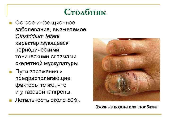 Столбняк n n n Острое инфекционное заболевание, вызываемое Clostridium tetani, характеризующееся периодическими тоническими спазмами