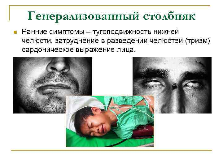 Генерализованный столбняк n Ранние симптомы – тугоподвижность нижней челюсти, затруднение в разведении челюстей (тризм)
