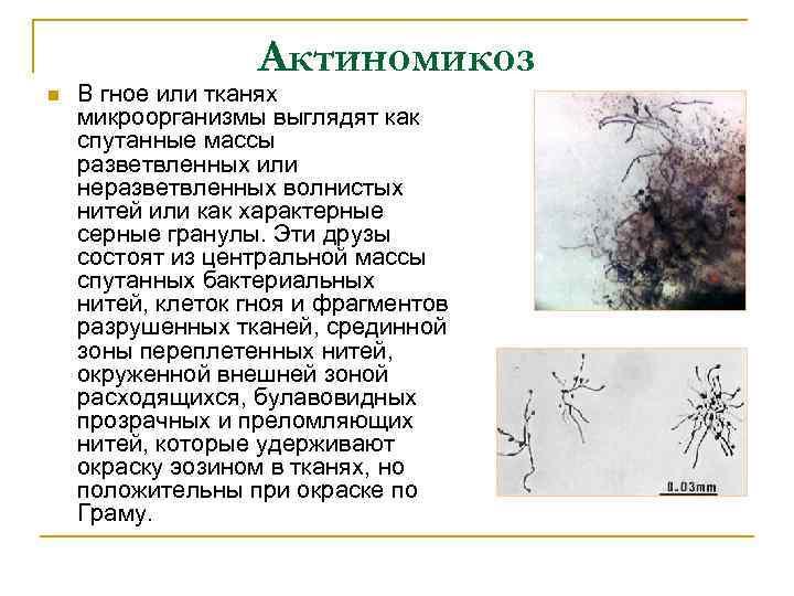 Актиномикоз n В гное или тканях микроорганизмы выглядят как спутанные массы разветвленных или неразветвленных