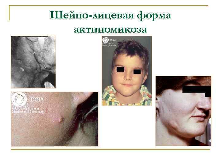 Шейно-лицевая форма актиномикоза